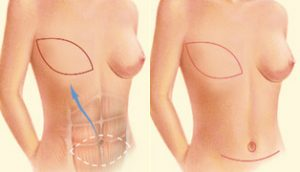 Mastectomía y reconstrucción de la mama
