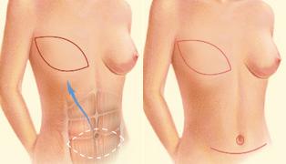 reconstrucción de la mama