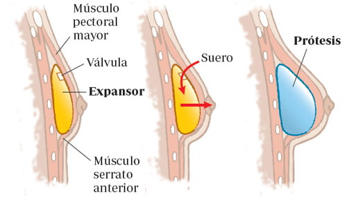 mastectomía, reconstrucción con prótesis