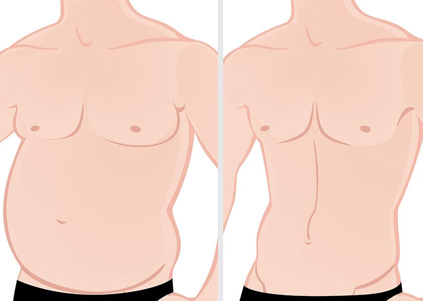 hombres-liposuccion-ginecomastia