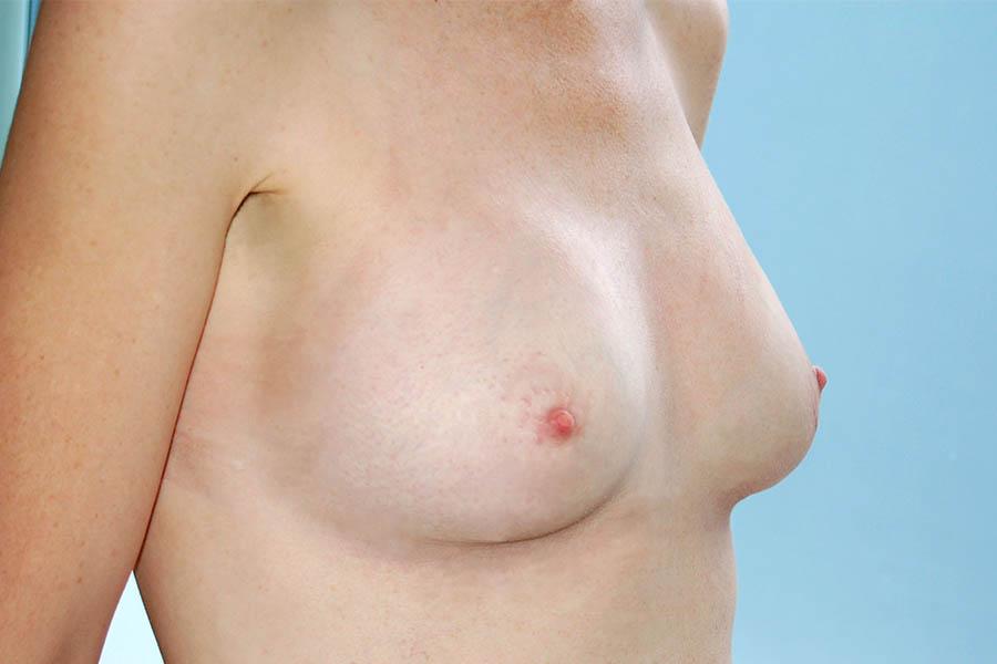 After-Aumento de pecho